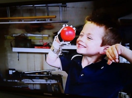 In 2012, 5-year-old Liam was the first person to receive a complete Robohand. After reading about Richard Van As's work developing a 3D-printed prosthetic, Liam's mother reached out to Richard to ask if he might make a hand for her son who had been born without fingers on one hand. Liam's wrist joint drives the action of the hand which is entirely 3D printed except for a few pieces of hardware and cord.